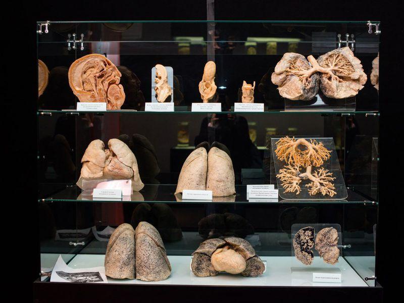 Экскурсия Анатомический Эрмитаж: обзорная экскурсия-лекция